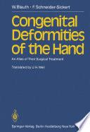 Congenital Deformities of the Hand Book