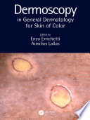 Dermoscopy in General Dermatology for Skin of Color