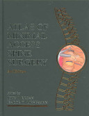 Atlas of Minimal Access Spine Surgery  Second Edition