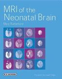 MRI of the Neonatal Brain