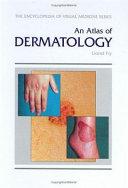 An Atlas of Dermatology