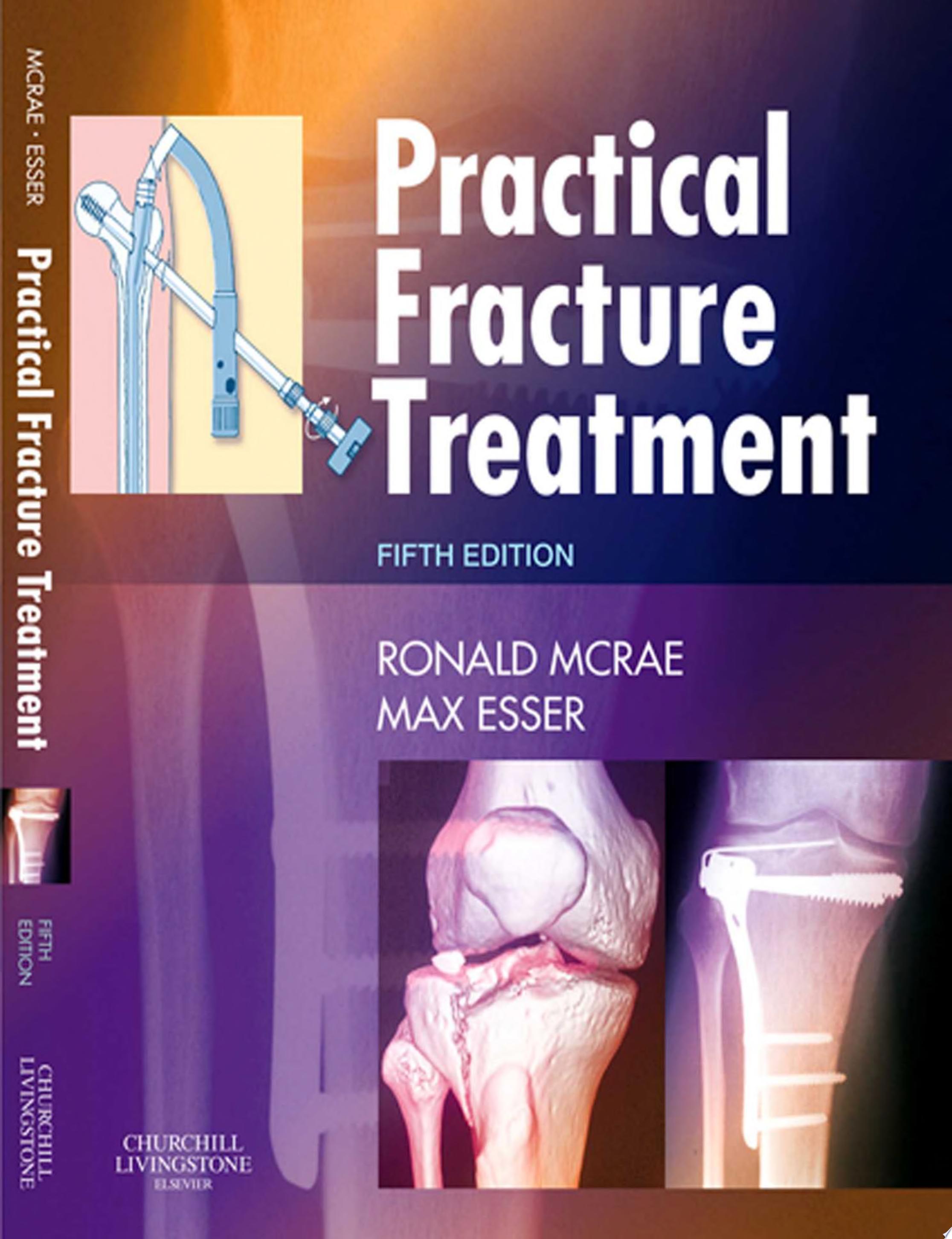 Practical Fracture Treatment E Book
