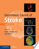 Uncommon Causes of Stroke Book