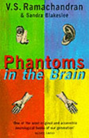 Pdf Phantoms in the Brain