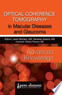 Optical Coherence Tomography in Macular Diseases and Glaucoma   Advanced Knowledge