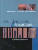 Vein Diagnosis   Treatment  A Comprehensive Approach Book