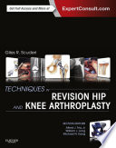 Techniques In Revision Hip And Knee Arthroplasty E Book