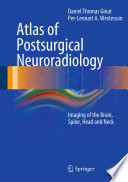 Atlas of Postsurgical Neuroradiology Book