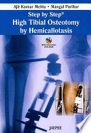 Step by Step: High Tibial Osteotomy by Hemicallotasis