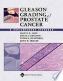 Gleason Grading Of Prostate Cancer