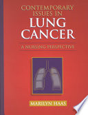 Contemporary Issues in Lung Cancer Book