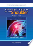 Arthroscopic Techniques of the Shoulder