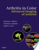 Arthritis in Color E Book