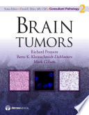 Brain Tumors Book