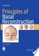 Principles of Nasal Reconstruction