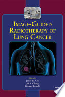 Image Guided Radiotherapy Of Lung Cancer Book PDF