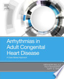 Arrhythmias in Adult Congenital Heart Disease