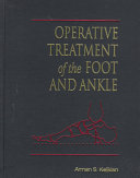 Operative Treatment Of The Foot And Ankle Book PDF