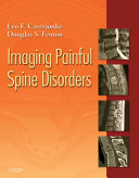 Pdf Imaging Painful Spine Disorders E-Book