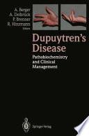 Dupuytren   s Disease