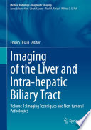 Imaging of the Liver and Intra hepatic Biliary Tract