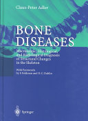 Bone Diseases ebook