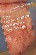 Top Home Herbal Remedies For Acne