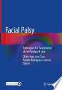 Facial Palsy Book