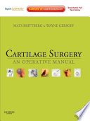 Cartilage Surgery E Book Book PDF