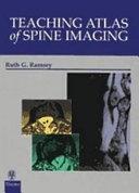 Teaching Atlas of Spine Imaging