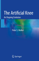 The Artificial Knee