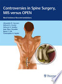 Controversies in Spine Surgery  MIS versus OPEN Book