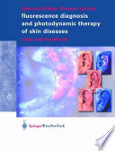 Fluorescence Diagnosis and Photodynamic Therapy of Skin Diseases Book
