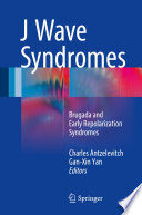 J Wave Syndromes