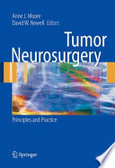 Tumor Neurosurgery Book