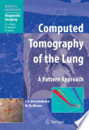 Computed Tomography of the Lung  : A Pattern Approach