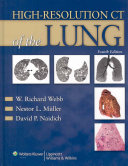 High resolution CT of the Lung Book