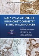 IASLC Atlas of PD-L1 Immunohistochemistry Testing in Lung Cancer