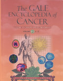 The Gale Encyclopedia of Cancer  L Z  general index Book PDF