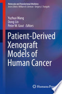 Patient Derived Xenograft Models of Human Cancer