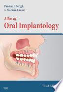 Atlas Of Oral Implantology   E Book