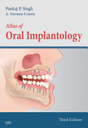 Atlas of Oral Implantology   E Book
