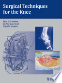 Surgical Techniques for the Knee