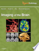Imaging of the Brain E-Book
