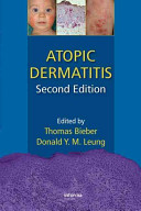 Atopic Dermatitis  Second Edition