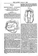 Side 35