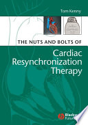 The Nuts and Bolts of Cardiac Resynchronization Therapy Book