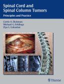 Spinal Cord and Spinal Column Tumors Pdf/ePub eBook