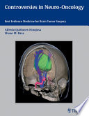 Controversies in Neuro Oncology Book