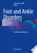 Foot And Ankle Disorders Book PDF